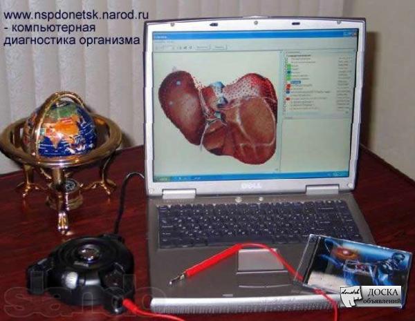 Компьютерная диагностика донецк