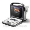 Портативный УЗИ сканер SonoScape S6